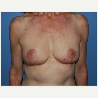 55-64 year old woman treated with Breast Lift after 1657660