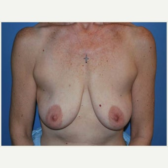 55-64 year old woman treated with Breast Lift before 1657660