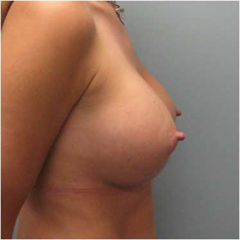 37 year old woman treated with Breast Augmentation after 3468352