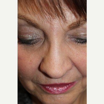 65-74 year old woman treated with Revision Rhinoplasty before 3645033