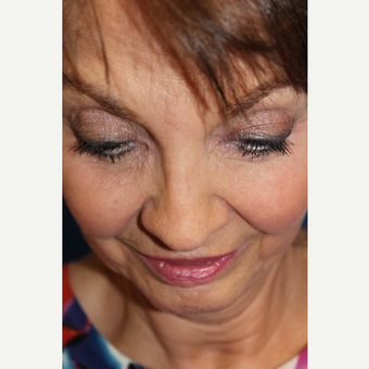 65-74 year old woman treated with Revision Rhinoplasty after 3645033
