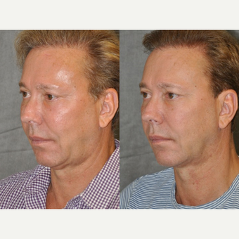 55-64 year old man treated with Facelift before 3181906