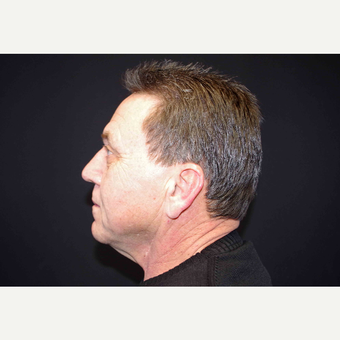 55-64 year old man treated with Fat Transfer and Direct Neck Lift before 3439290