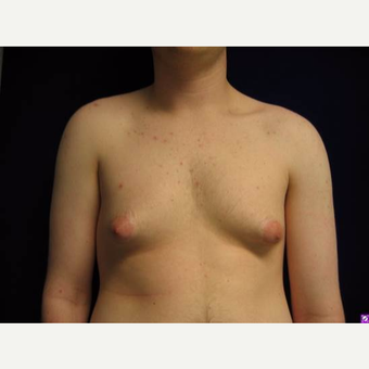 18-24 year old man treated with Male Breast Reduction before 3711752