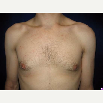 18-24 year old man treated with Male Breast Reduction after 3711752