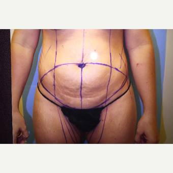 25-34 year old woman treated with Tummy Tuck before 3384488