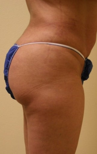 25-34 year old woman treated with Brazilian Butt Lift after 2054583