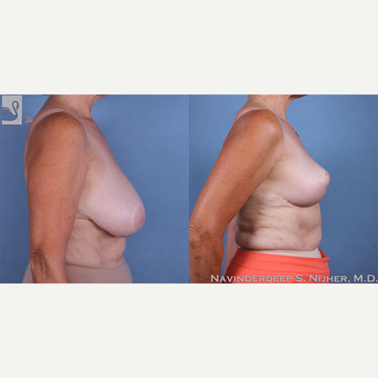 55-64 year old woman treated with Breast Reduction after 3770057