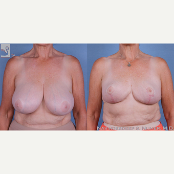 55-64 year old woman treated with Breast Reduction before 3770057