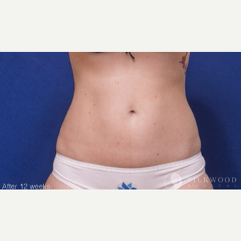 25-34 year old woman treated with CoolSculpting on flanks after 3029513