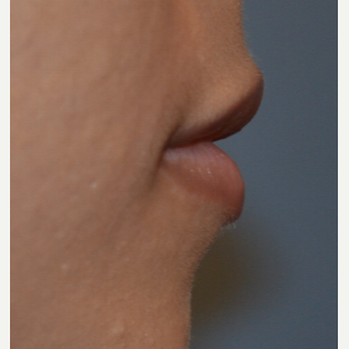 25-34 year old woman treated with Juvederm before 3843929