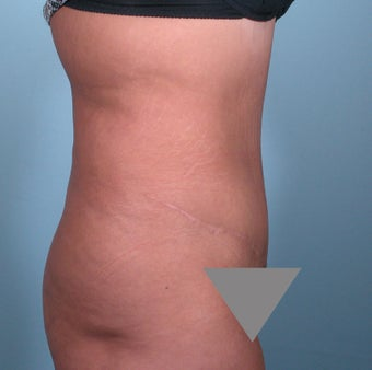 No Drain Tummy Tuck after 379237