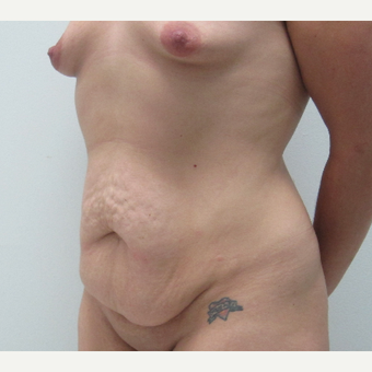 45-54 year old woman treated with Mommy Makeover before 3695992