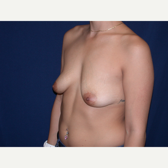 25-34 year old woman treated with Breast Augmentation before 3136278