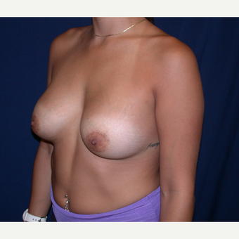 25-34 year old woman treated with Breast Augmentation after 3136278