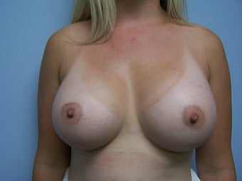 Breast Augmentation- 600cc silicone after 1079324