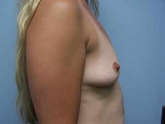 Breast Augmentation- 600cc silicone 1079324