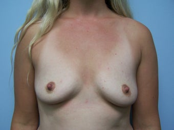 Breast Augmentation- 600cc silicone before 1079324