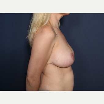 35-44 year old woman treated with Breast Reduction (view 2 of 2) after 3299661