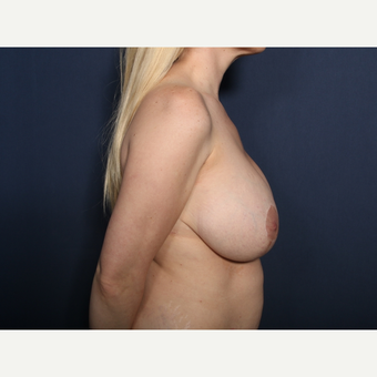 35-44 year old woman treated with Breast Reduction (view 2 of 2) before 3299661