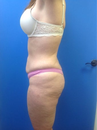 Buttock Implants with fat grafting 1460271