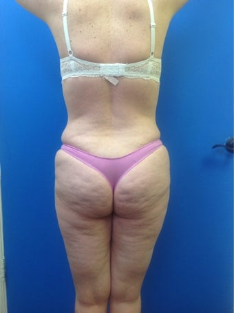 Buttock Implants with fat grafting before 1460271
