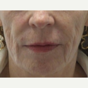 55-64 year old woman treated with Liquid Facelift before 2677675