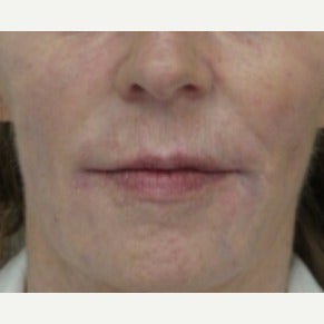 55-64 year old woman treated with Liquid Facelift after 2677675