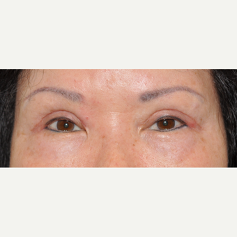 65-74 year old woman treated with Asian Eyelid Surgery after 3508753