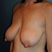 45-54 year old woman treated with Breast Lift