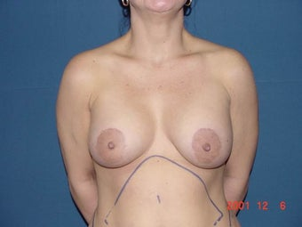 Breast Lift (Crescent Mastopexy) after 1339456