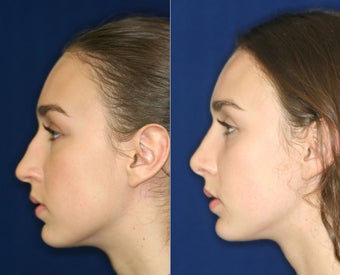 Nose Surgery  before 1430588