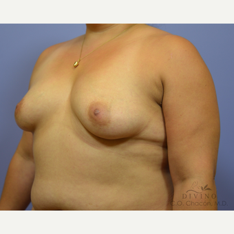 35-44 year old woman treated with Breast Augmentation before 3419057