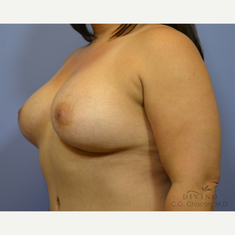 35-44 year old woman treated with Breast Augmentation after 3419057