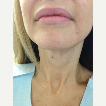 45-54 year old woman treated with Ultherapy after 2363835