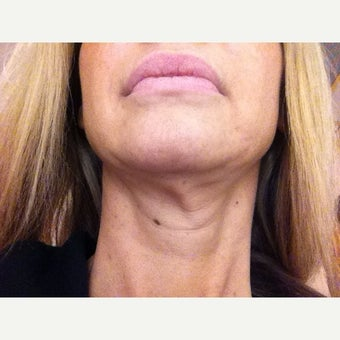45-54 year old woman treated with Ultherapy before 2363835