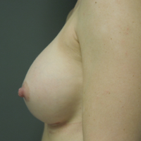 Breast Augmentation after 1191592