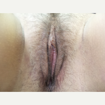 25-34 year old woman treated with Labiaplasty after 3542202