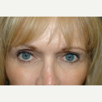 45-54 year old woman treated with Eye Bags Treatment after 3837290