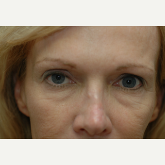 45-54 year old woman treated with Eye Bags Treatment before 3837290