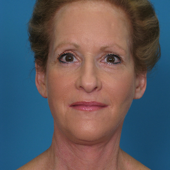 45-54 year old woman treated with Facelift after 3623590