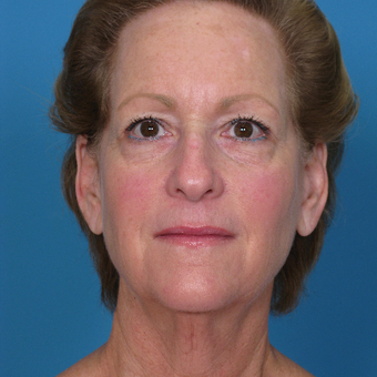 45-54 year old woman treated with Facelift before 3623590