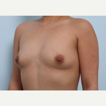 Breast Augmentation before 3339943