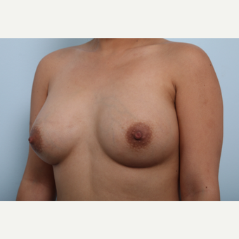 Breast Augmentation after 3339943