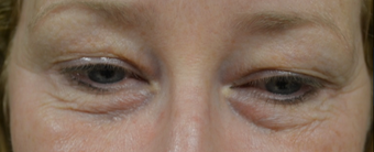 45-54 year old woman treated with Eye Bags Treatment before 3287772