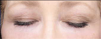 45-54 year old woman treated with Eye Bags Treatment after 3287772