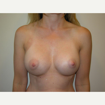 35-44 year old woman treated with Breast Augmentation after 3325081
