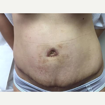 35-44 year old woman treated with Tummy Tuck after 3629237