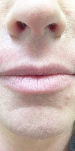 35-44 year old woman treated with Lip Augmentation before 3513994