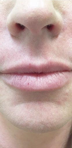 35-44 year old woman treated with Lip Augmentation after 3513994